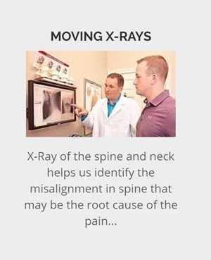 Moving X-Rays